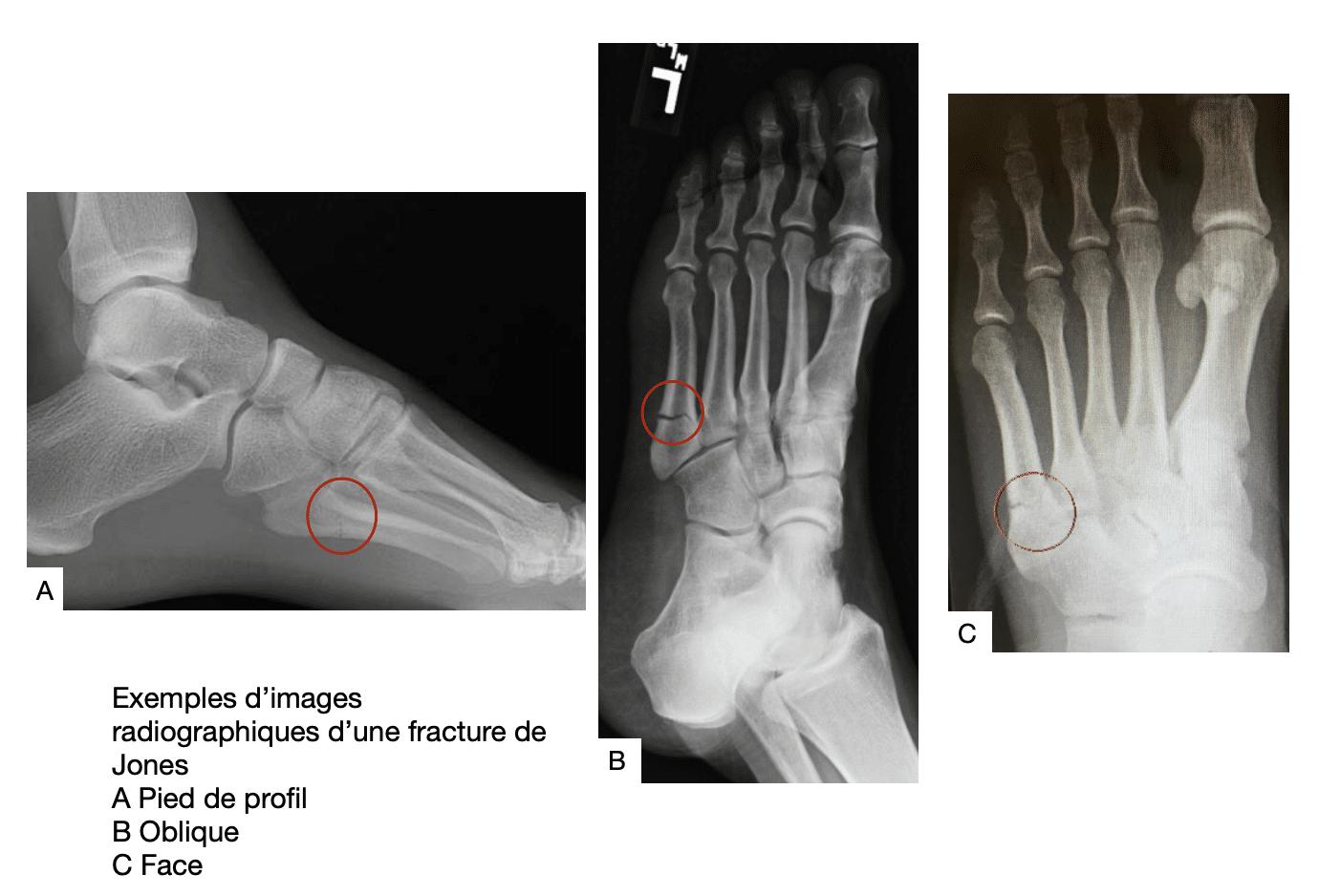 Radiographies d'une fracture de Jones