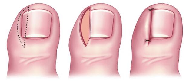 Ongle incarné : quand l'opération devient nécessaire