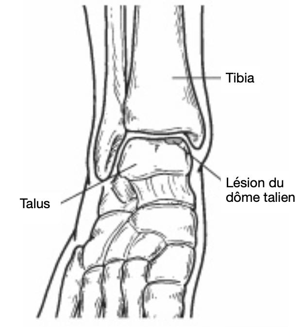 Lésion du dôme italien : os du pied