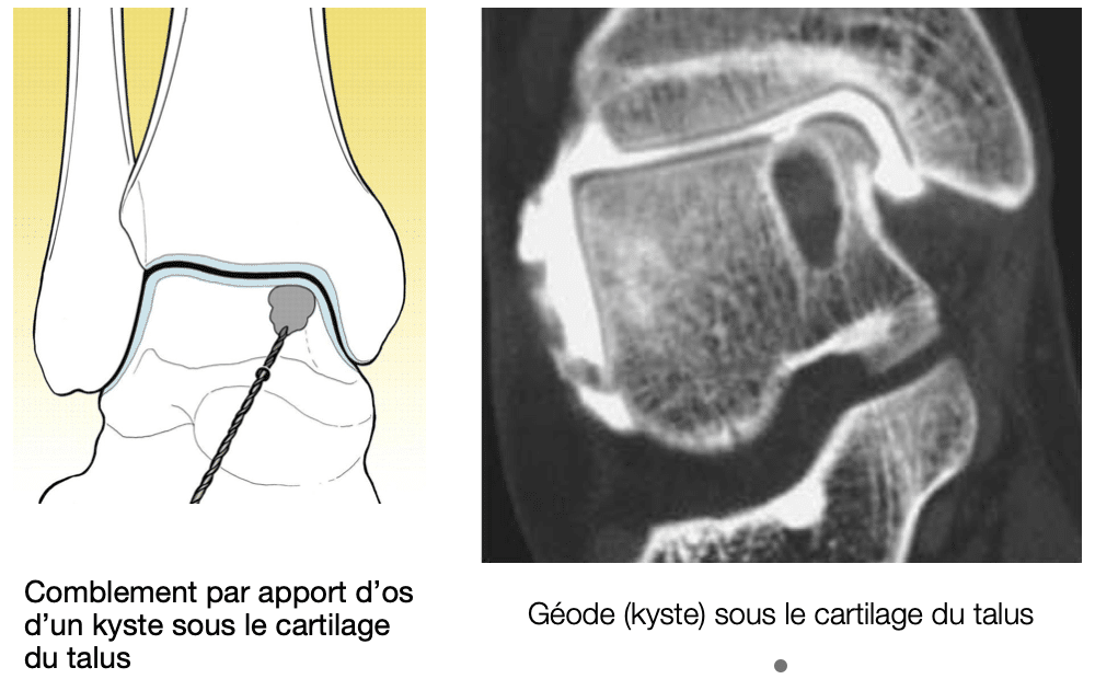 Traitement chirurgical du cartilage : relèvement et greffe