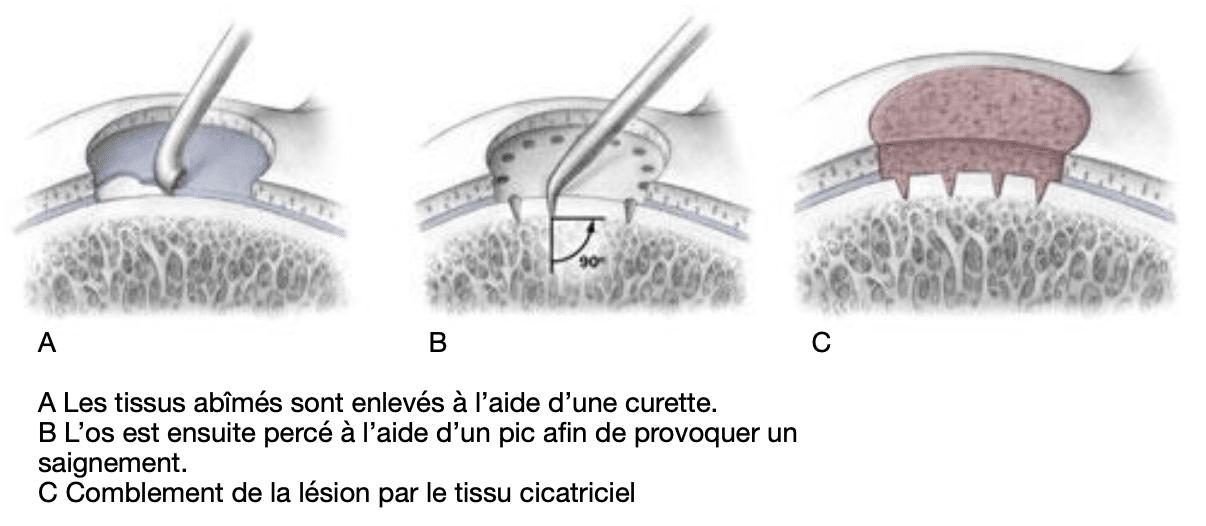 Cartilage : microfracturing sous arthroscopie
